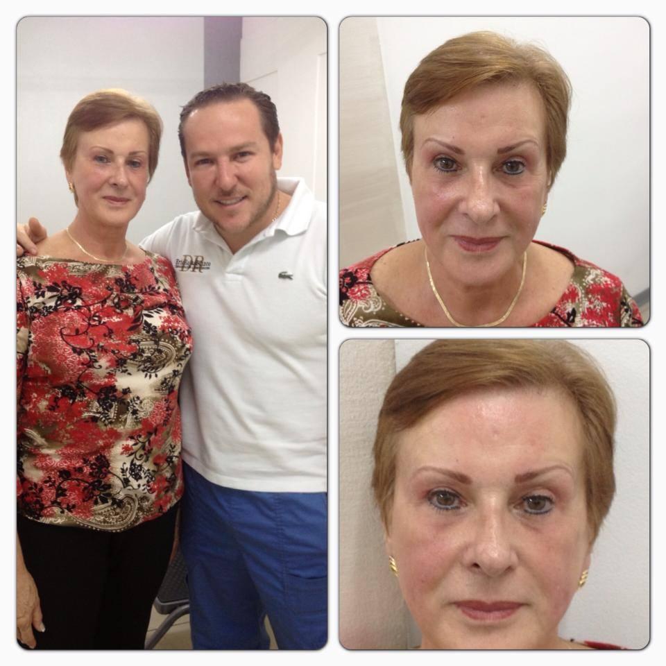A tus 68 años puedes lucir un rostro fresco y natural