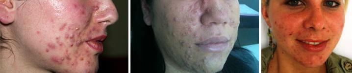acne_titulo
