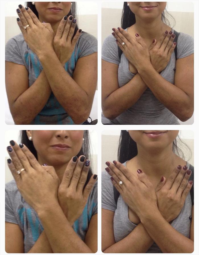 Dos semanas de tratamiento los pacientes con dermatitis Atopica
