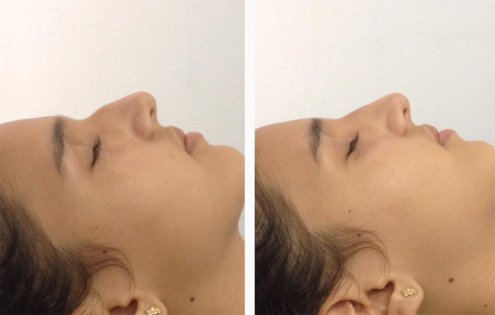 En 5 minutos moldeamos tu nariz