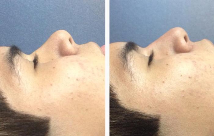 Tu nariz mejora en 5 minutos