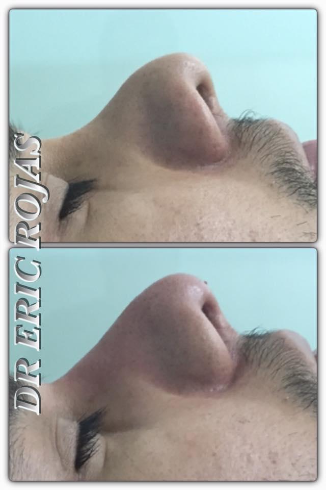Después de una cirugía de nariz que no fue tan exitosa nosotros podemos corregir tu perfil y darte una nueva esperanza