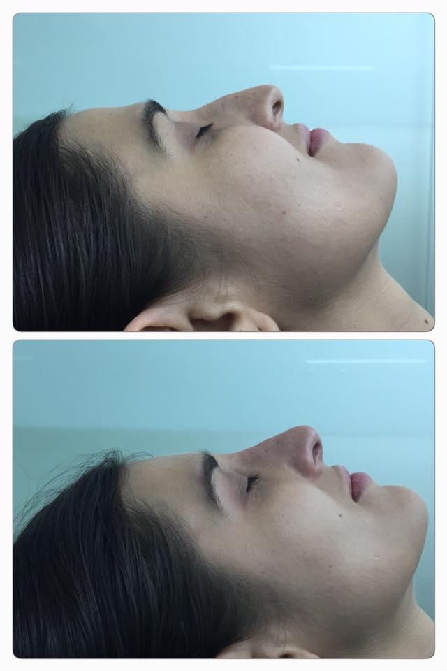 Corrige tu nariz sin cirugía. Acá tenemos la forma. DR ERIC ROJAS 22483535