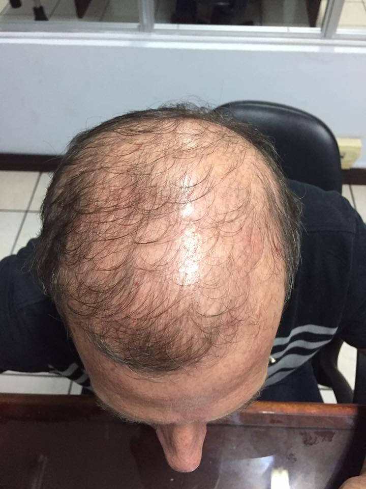Mejora tu cabello acá te damos la solución. No te conformes con menos.