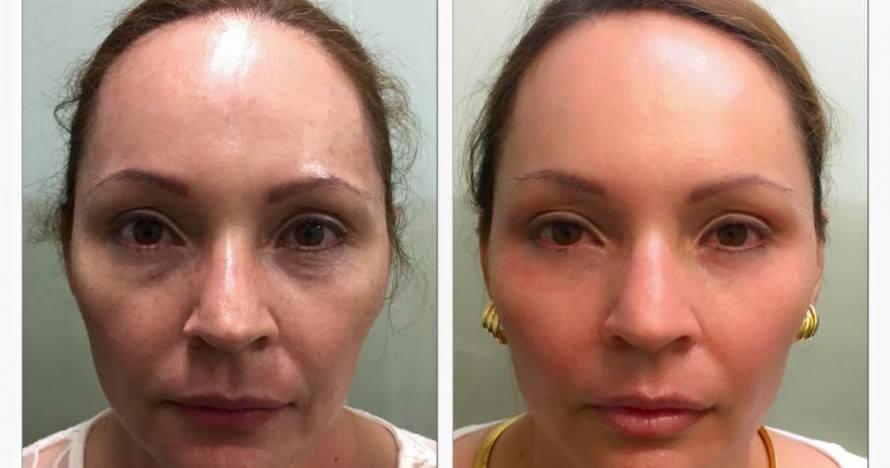 Feliz doña Sandra Castro con su refrescamiento facial