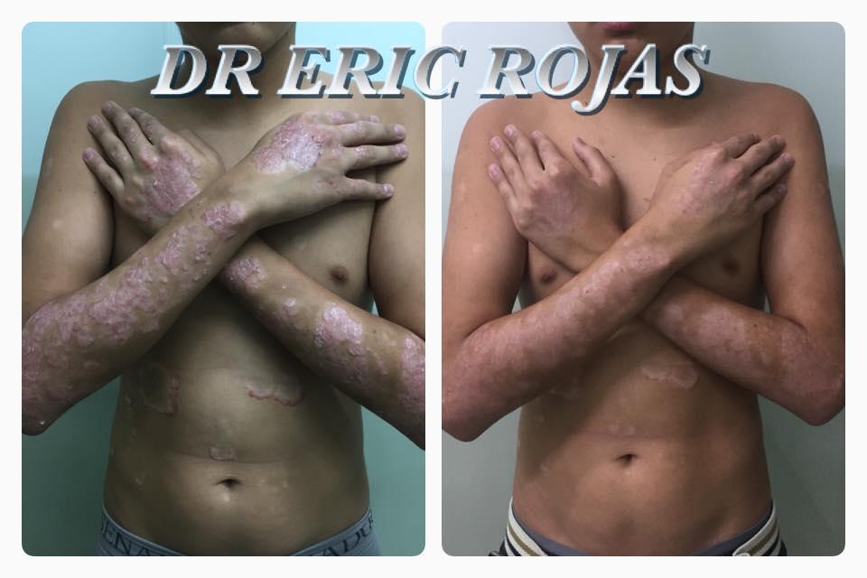 PSORIASIS SEVERA ya con tratamiento de Un mes y medio mejoría de un 80%