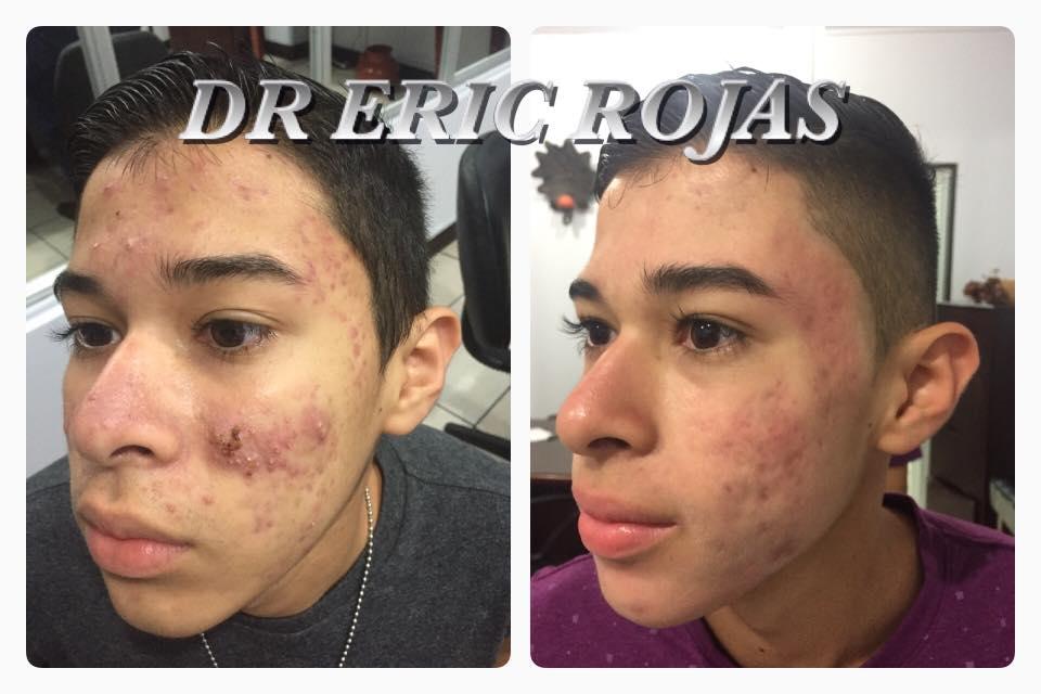 Levar una SONRISA en la cara de un chico que ha sufrido tanto por ACNÉ NO TIENE PRECIO