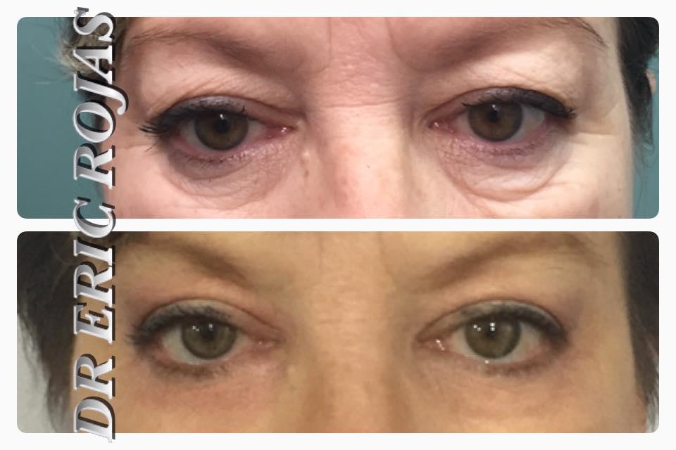 Mejora el contorno de tus ojos.