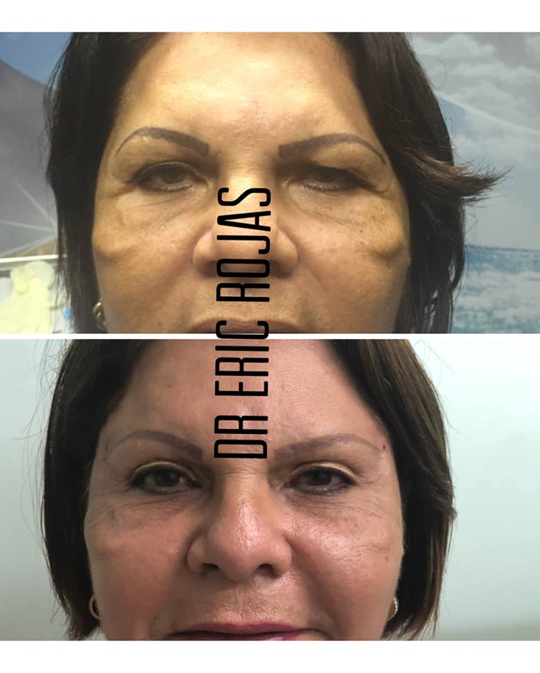 Quieres refrescar tu rostro sin cirugía