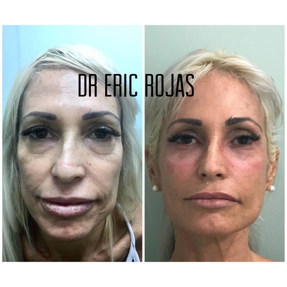 REJUVENECIMIENTO FACIAL SIN CIRUGÍA del DR ERIC ROJAS