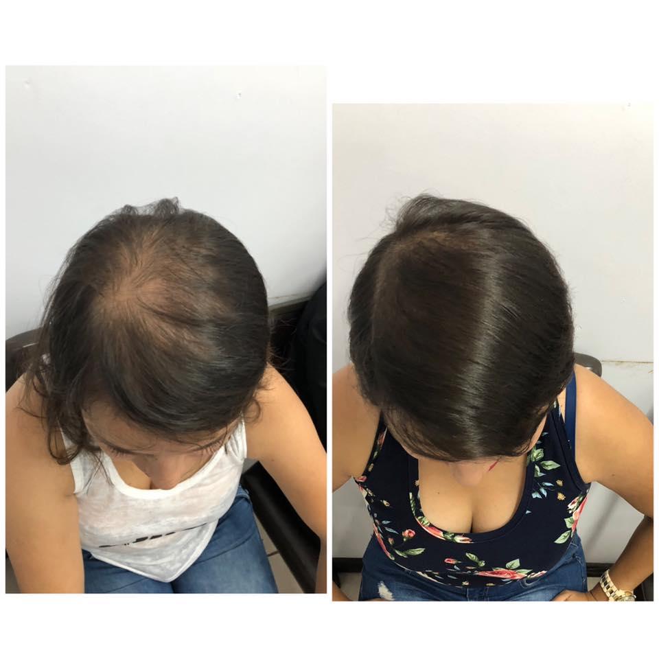 Tratamiento contra caída de cabello
