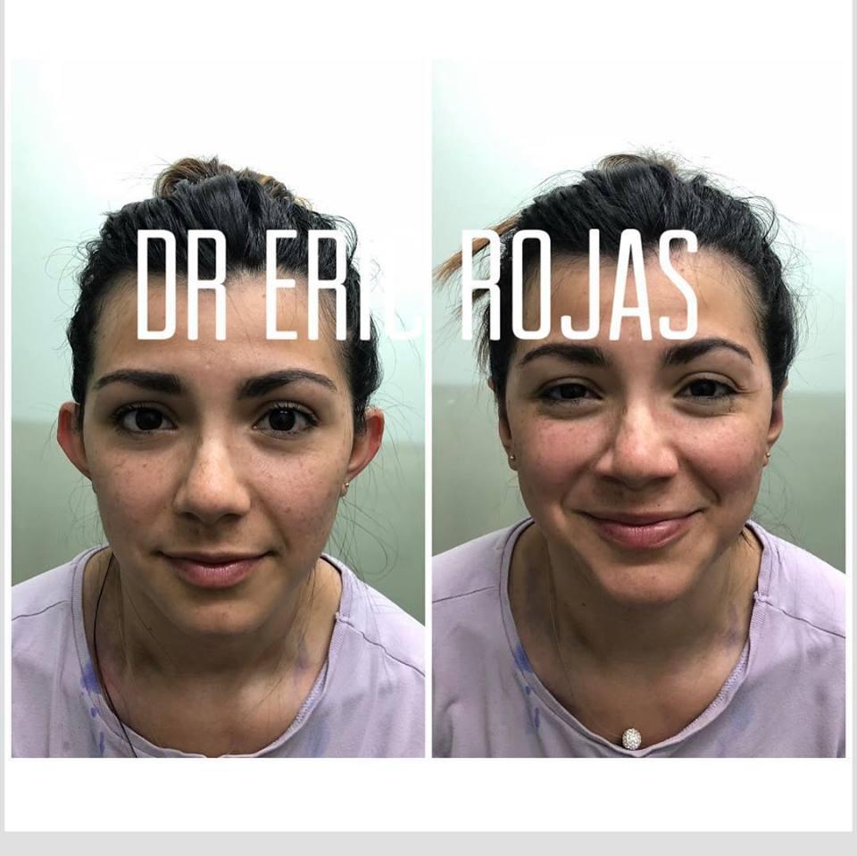 Corrección de orejas