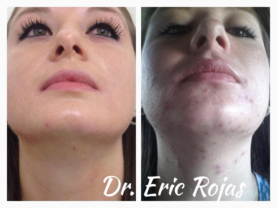 El acné tiene cura con el Dr Eric Rojas