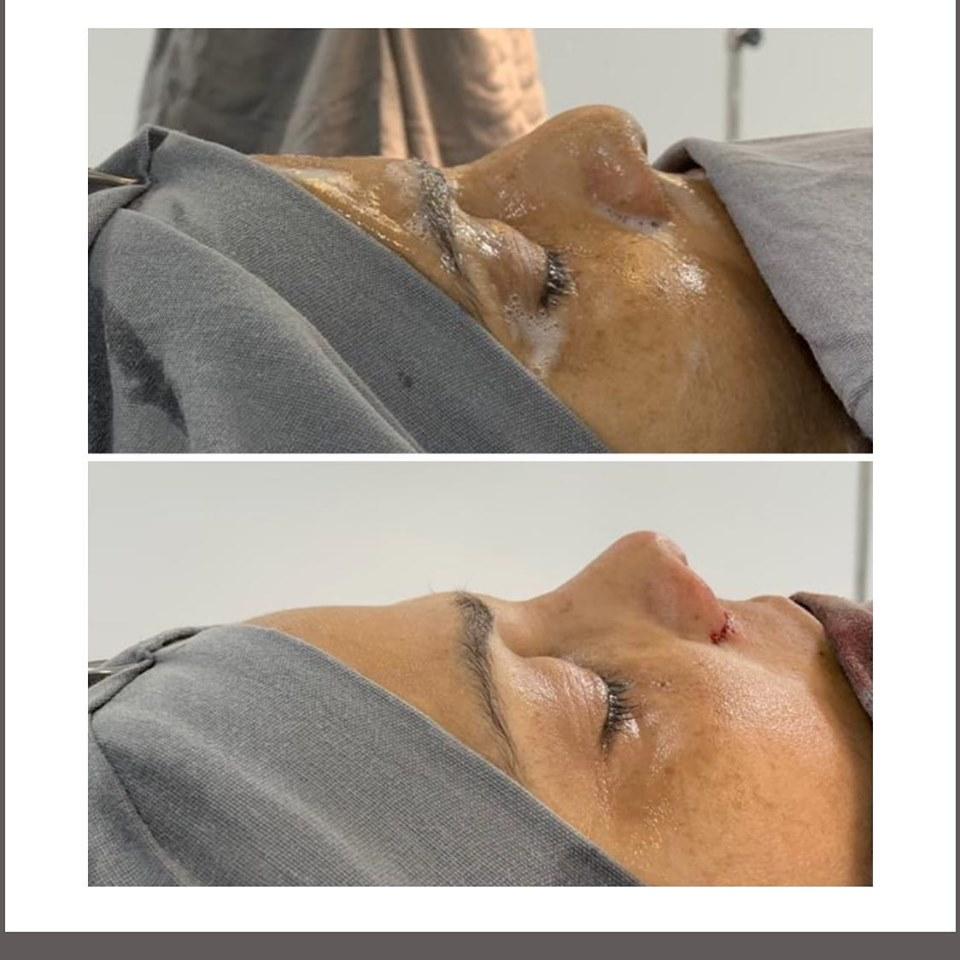 Corrección de nariz