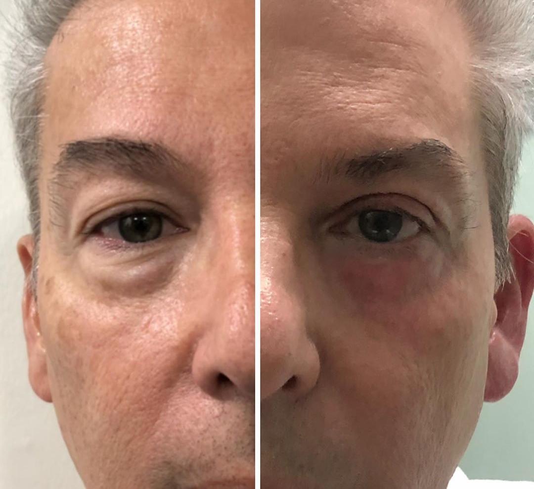 Rejuvenecimiento Facial sin cirugía 👍
