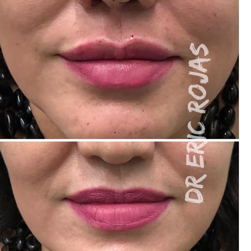 Modelado de labios