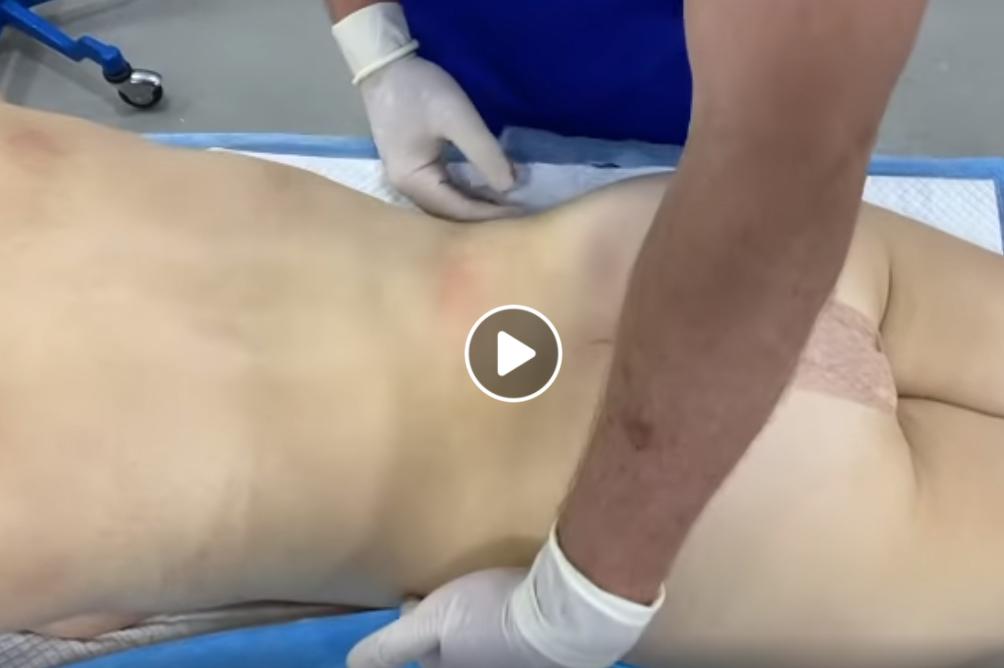 SLIM LÁSER DR ERIC ROJAS