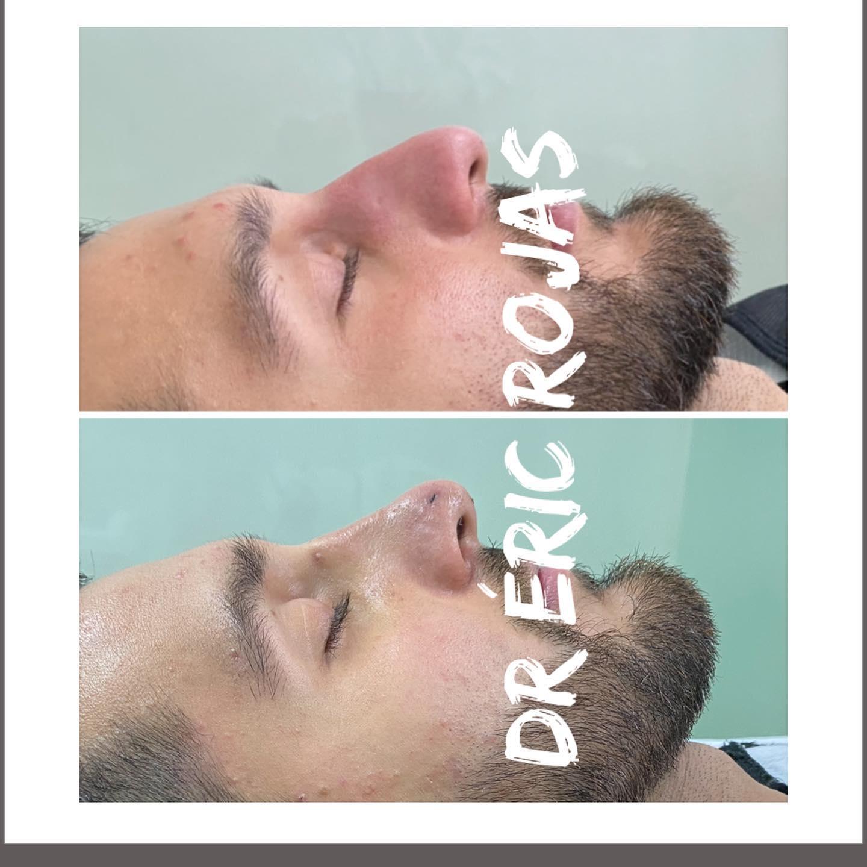RINO-lift  DR ÉRIC ROJAS en menos de 10 minutos cambiamos tu nariz SIN CIRUGÍA