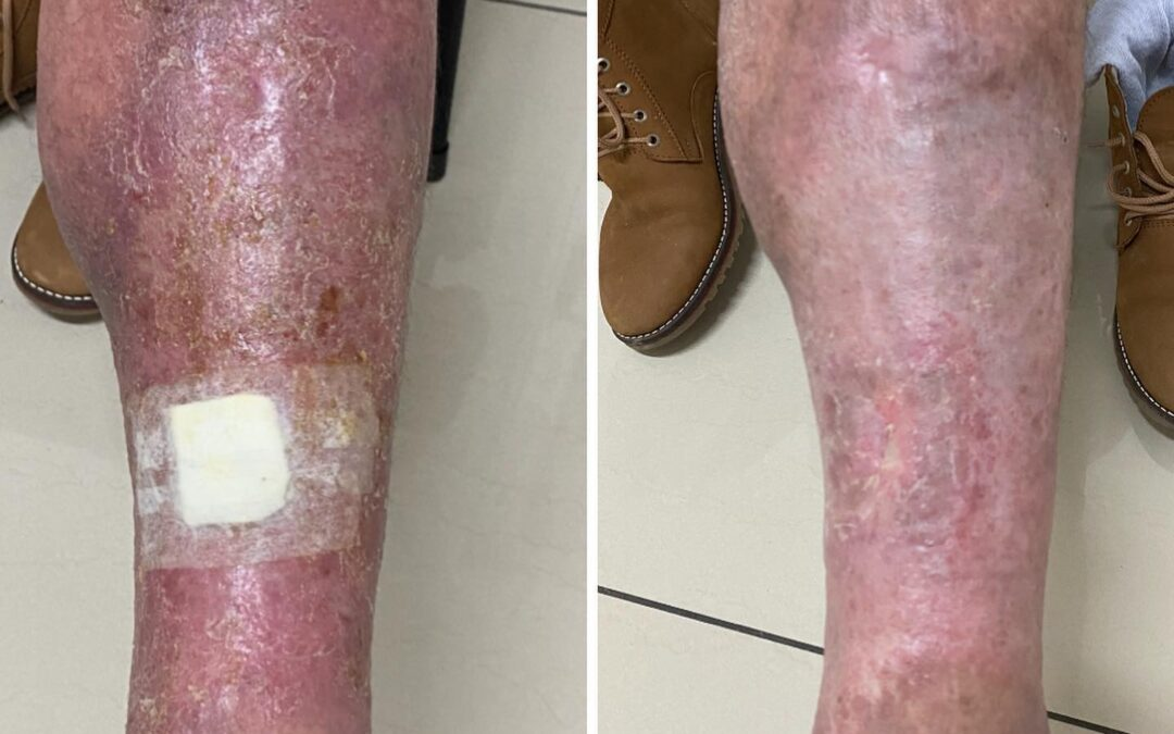 Celulitis o infección de tejidos profundos de la piel en una semana cambio completo
