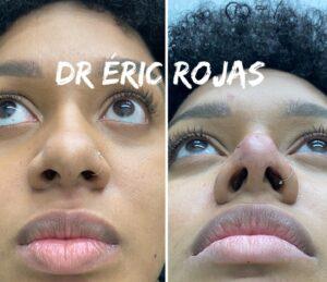 Afinamiento de punta de nariz