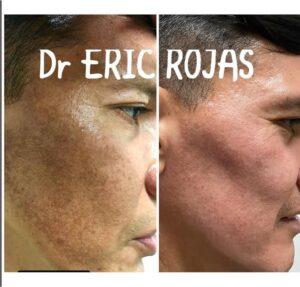 Te ayudamos a Eliminar las manchas en tu piel