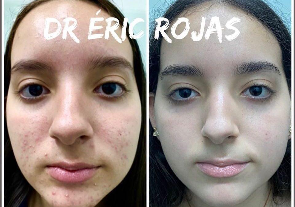 Rostros libres de acné