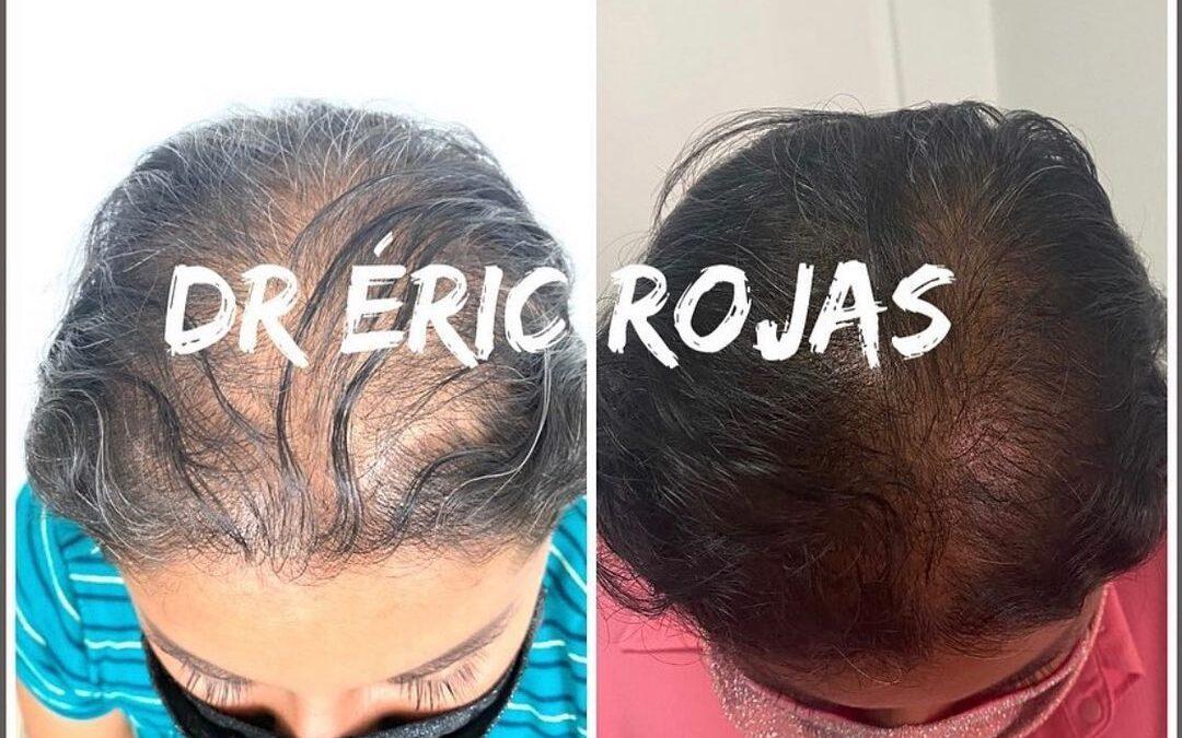 Sufres de caída del cabello?