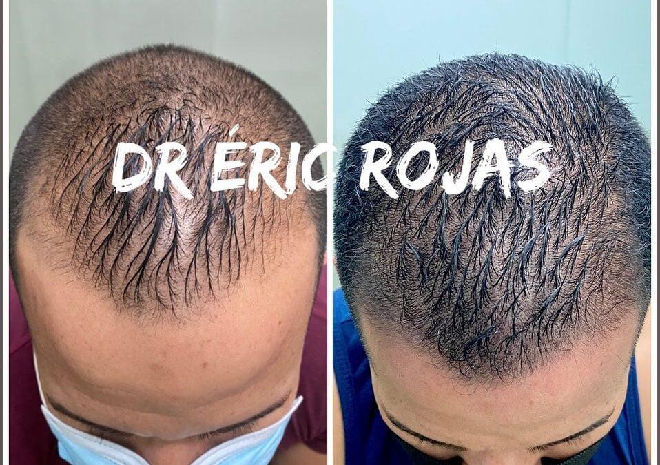 La caída del cabello es uno de los principales motivos de consulta dermatológica