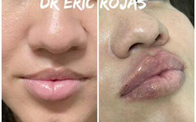 Modelado de LABIOS DR ÉRIC ROJAS en oferta solo por $400 dólares