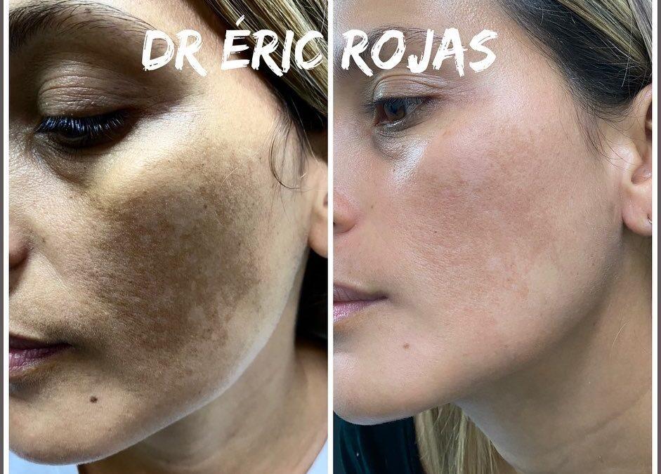 Manchas en la CARA DR ÉRIC ROJAS 22483535